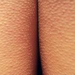 гиперкератоз кожи