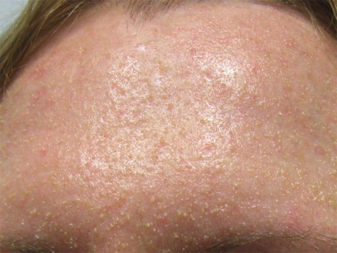 Все самое важное о гиперкератозе кожи