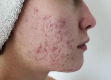Эффективное лечение угрей на лице в домашних условиях