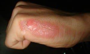 Ожог кипятком: степени, первая помощь и лечение в домашних условиях