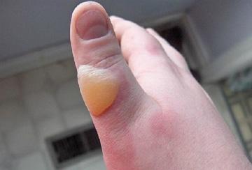 Мазь от химических ожогов кожи