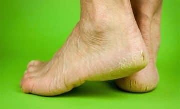 Зуд и жжение на ногах