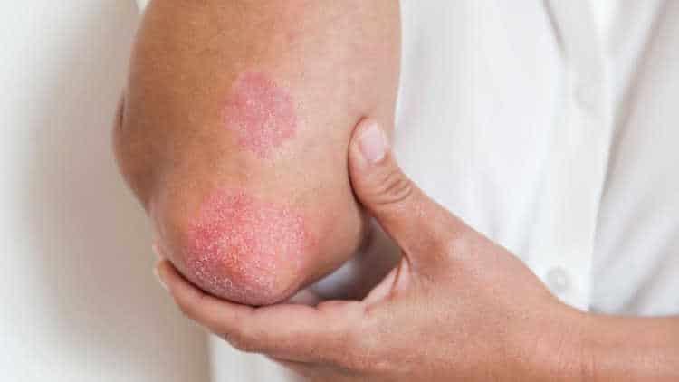 Причины возникновения красных пятен на теле у взрослых и их лечение