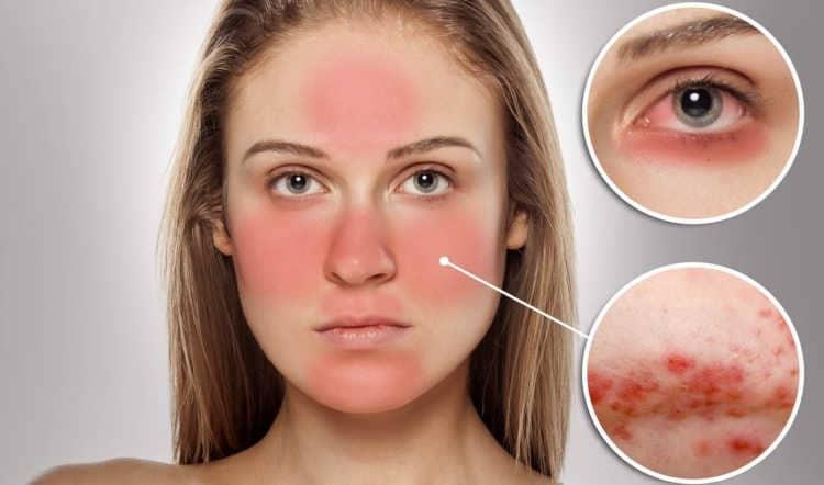Причины появления розовых угрей на лице (розацеа) и способы лечения