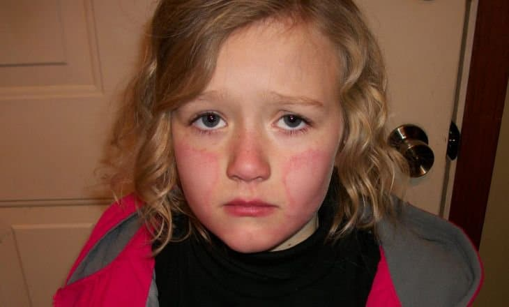 Чем лечить обморожение щек у ребенка