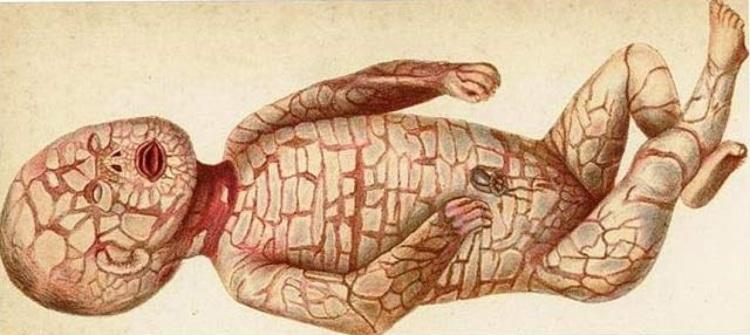 Что такое ихтиоз кожи, и можно ли вылечить это заболевание