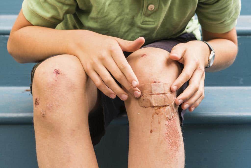 Ранозаживляющая мазь на открытую рану