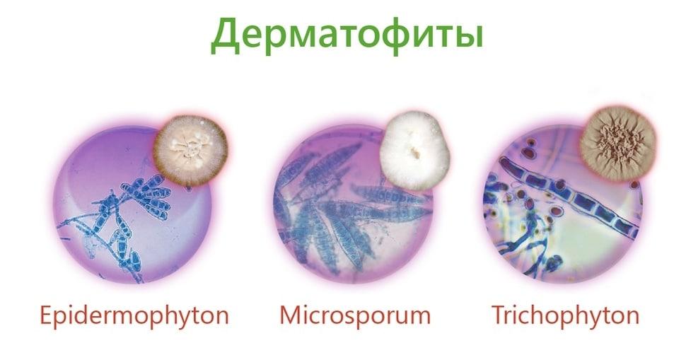 Очень заразно: как лечить микроспорию — разновидность стригущего лишая