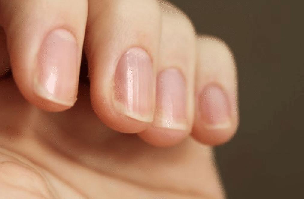 Вертикальные полоски на ногтях рук что это