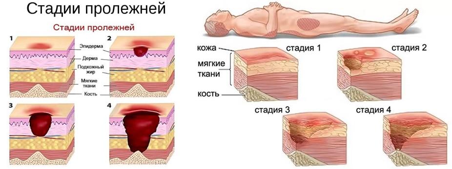 Ушах лечение пролежней на анализ норма белок крови общий