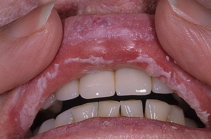 Почему на губах под кожей появляются белые точки, пятна, пупырышки