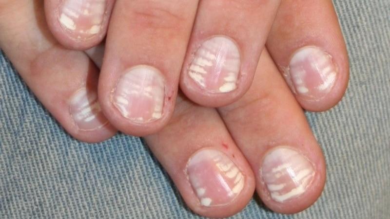 Почему появляются белые точки и пятна на ногтях - что это значит