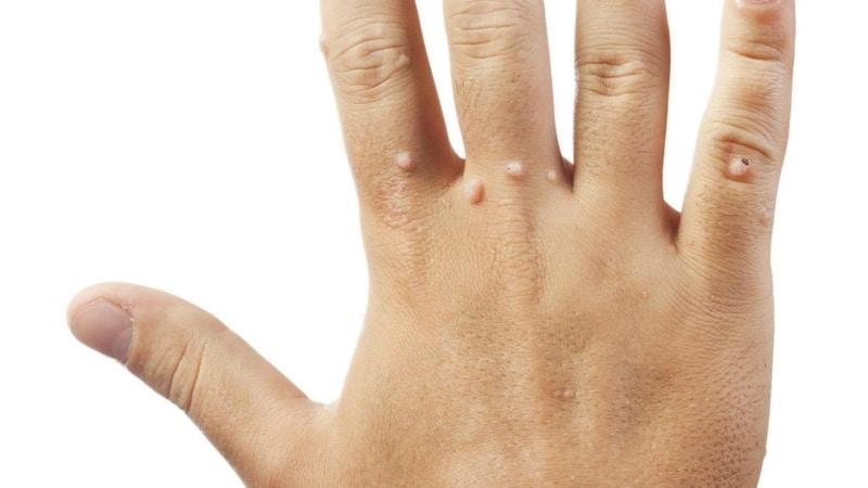Как выглядит бородавка на пальце руки фото