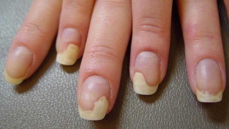 Онихолизис или отслоение ногтя от ногтевого ложа: как лечить в домашних условиях