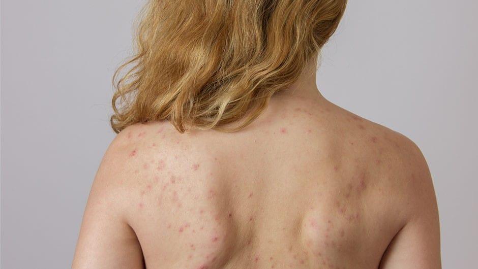 Причины прыщей на спине у женщин и 7 способов их лечения