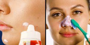 Перекись водорода от прыщей на лице: отзывы и применение