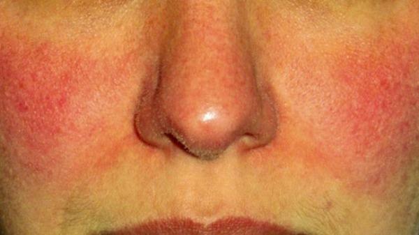 покрасненеи и шелушение кожи на лице