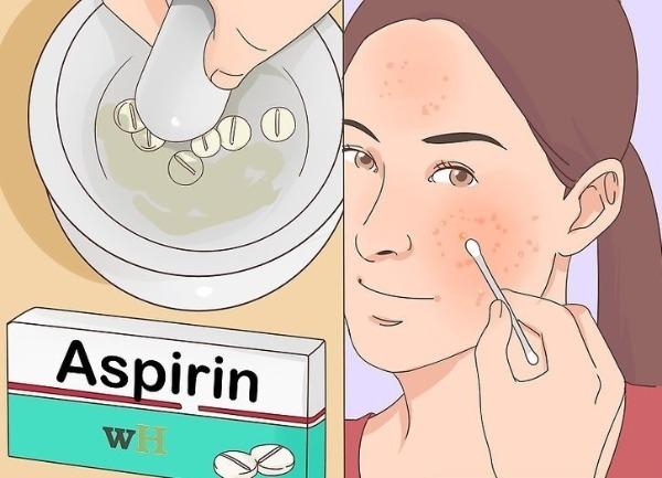 аспирин от прыщей
