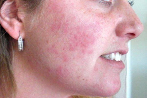 Шелушится кожа на лице причины и лечение