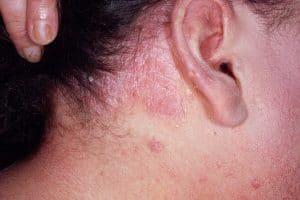 Лечение демодекоза на лице: какие препараты, мази, крема использовать, также покажем фото болезни у женщин, симптомы и причины заболевания, нужна ли диета
