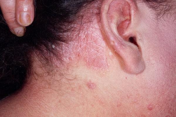 Демодекоз волосистой части головы: симптомы