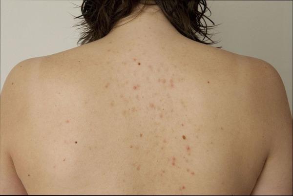 черные точки на спине