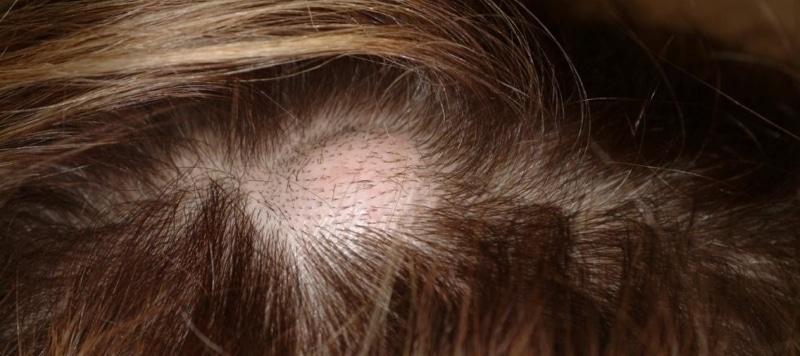 Атерома волосистой части головы: что это такое и как лечится