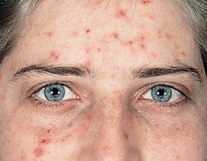 Как очистить лицо от угрей?
