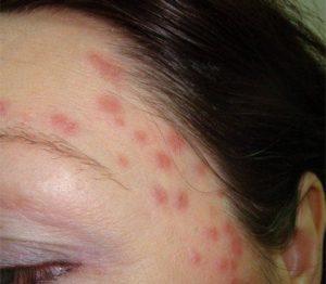 Стрептодермия на лице и теле