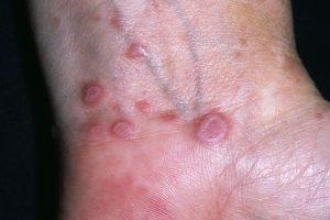 Розовый лишай: причины возникновения и лечение у человека
