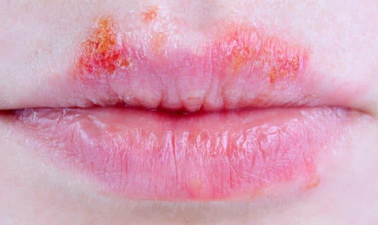 Как лечить хейлит на губах у детей и взрослых