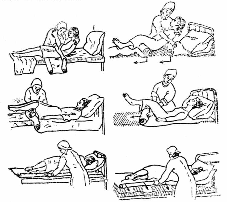 Основное о лечении пролежней на ягодицах в домашних условиях